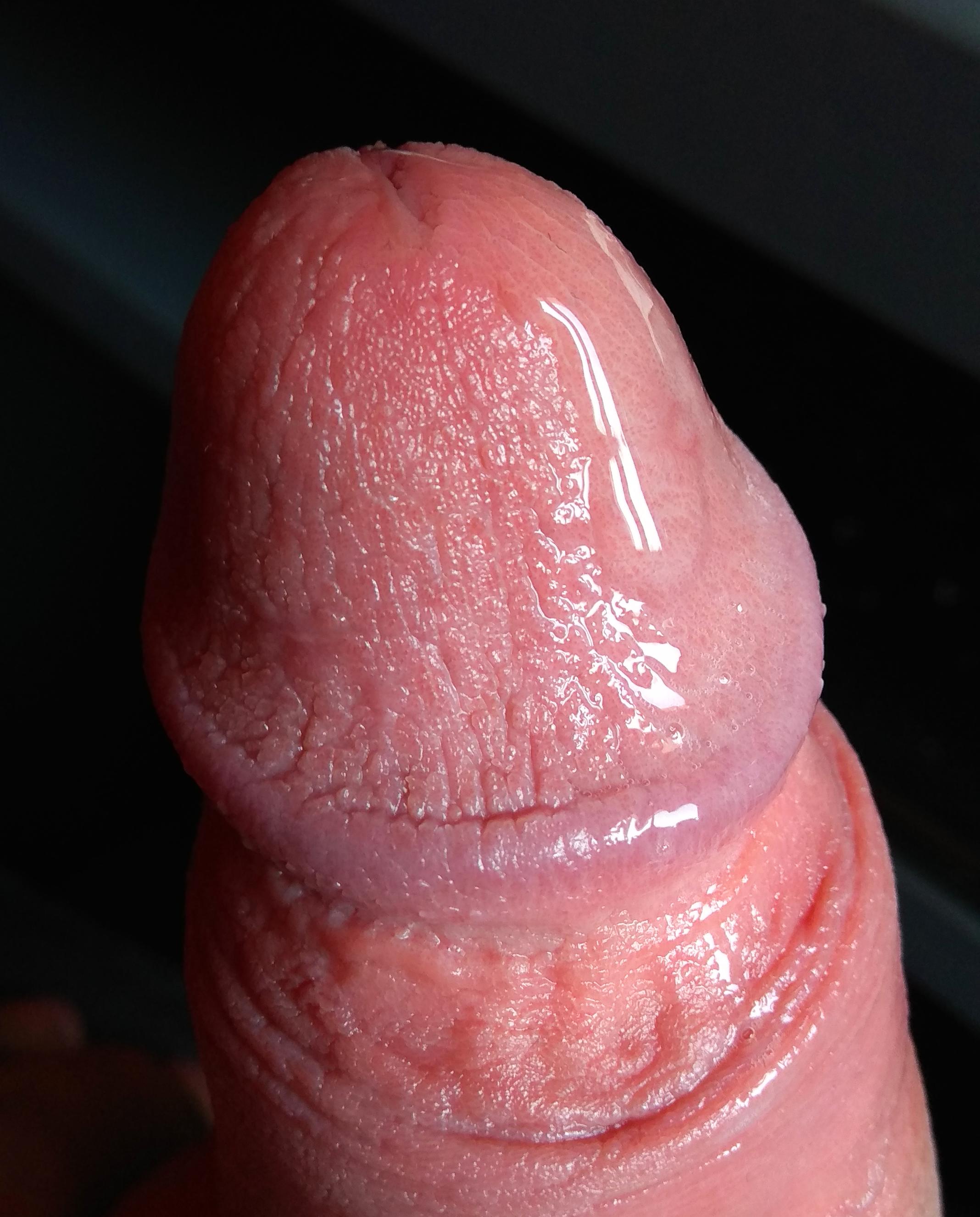 lehetséges-e a pénisz nagyítása vákuumszivattyúval