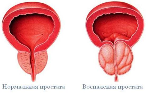hiányos erekciós prosztatagyulladás