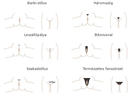 a pénisz vákuumszivattyújának károsodása