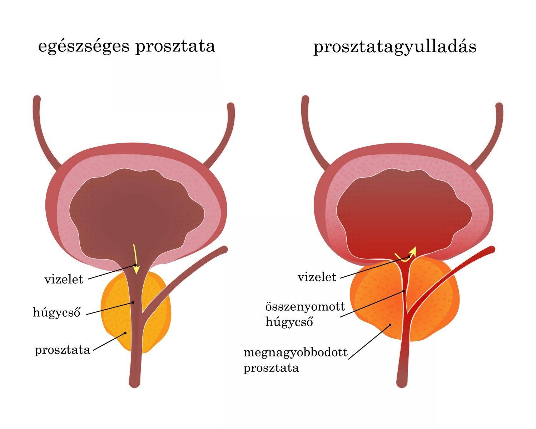 prosztatagyulladás és merevedési zavar erekció orgazmus nélkül férfiak