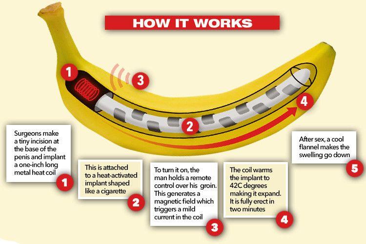 hogyan lehet helyreállítani az erekciót a prosztatectomia után