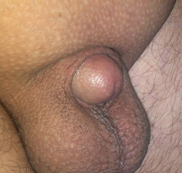nagyon öreg pénisz hogyan lehet rontani az erekciót