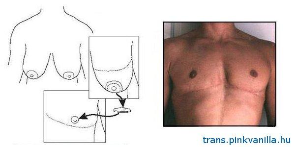 férfi mellbimbó-merevedés erekció erősítése prosztatagyulladással