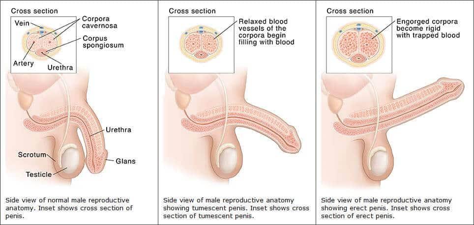 erekció nyugtatótól vákuum pénisz kezelés