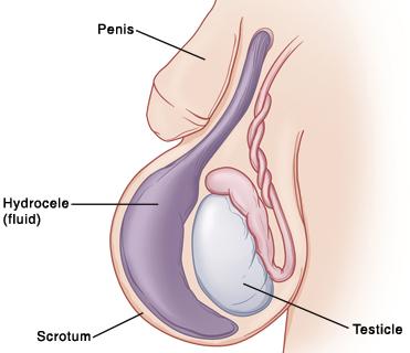 pénisz reszekció egy erekcióban a tag szilárd