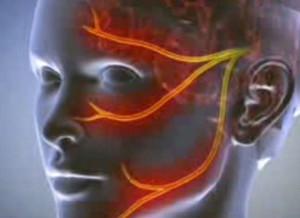 Nem tudom kinyitni a fejet erekció alatt gyenge erekciós krónikus prosztatagyulladás