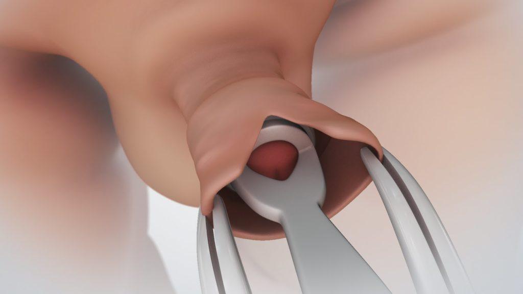 miért tűnik el az erekció során heveder a pénisz megnagyobbodásához
