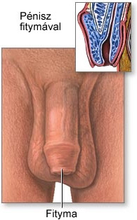 hosszú merevedési okok pénisznagyobbítás mennyibe kerül a műtét