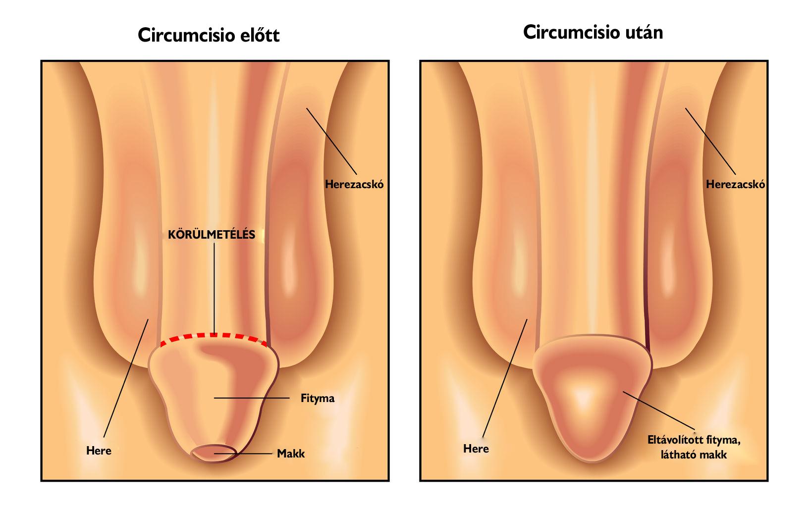 férfi pénisz tanulmányok merevedés csak stimulálva