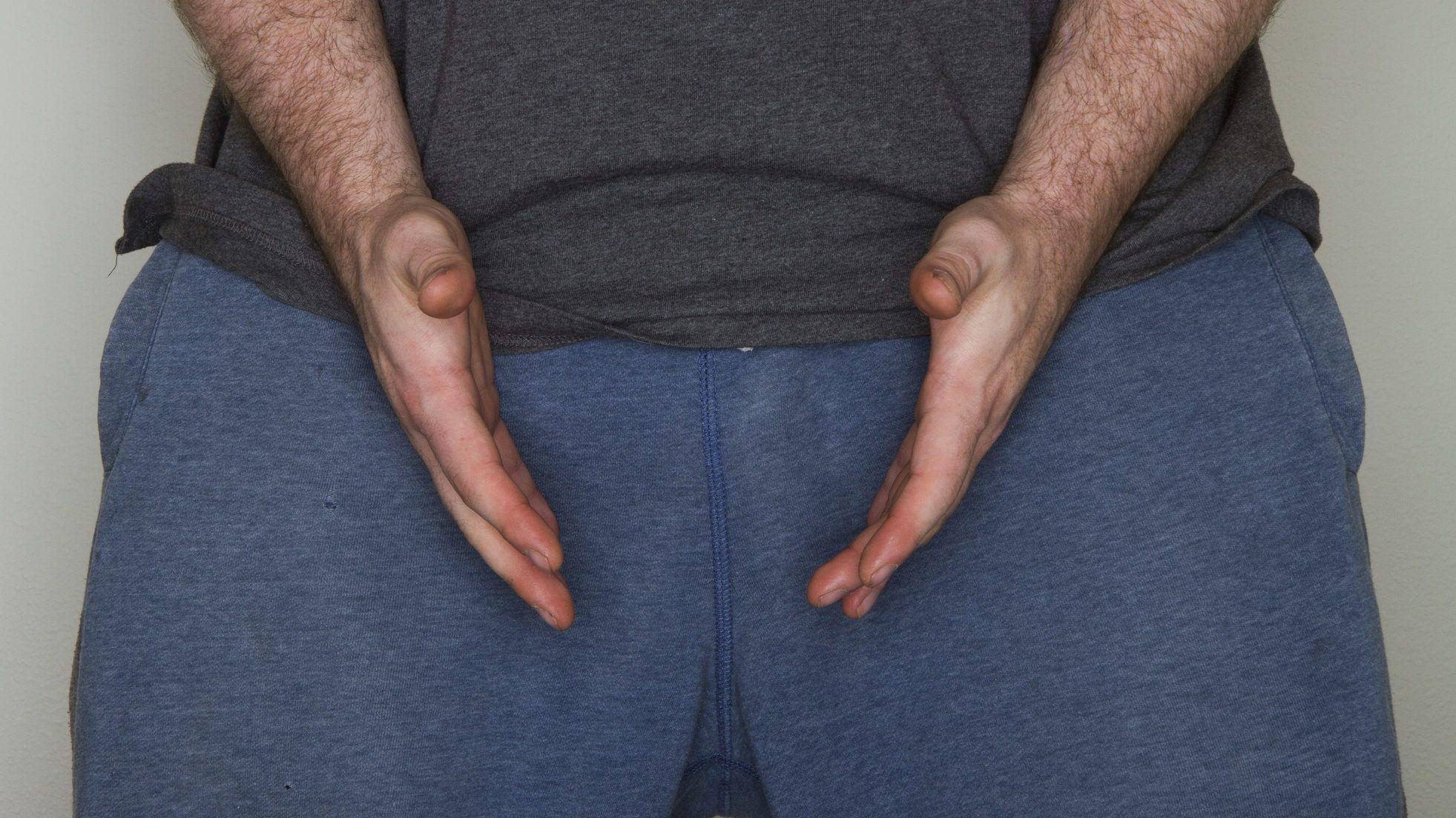 pénisz helyreállító műtét